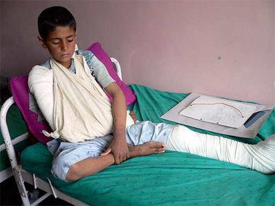Una niño afgano que resultó herido durante el bombardeo de la fuerza de la OTAN en la provincia sureña de Daykundi el pasado domingo. - EFE