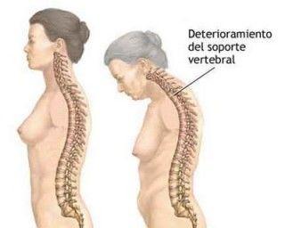 Tratar la osteoporosis puede prevenir el cáncer de mama hasta en un 40%
