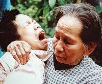 Malformaciones producidas por el uso de agente naranja utilizado por EEUU en Vietnam
