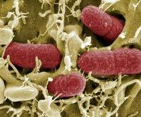 bacteria intestinal E coli Enterohemorrágica