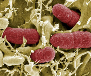 bacteria intestinal E coli Enterohemorrágica