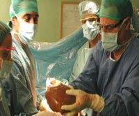 Aumentan trasplantes de órganos en el mundo en 2010