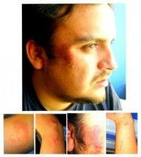 Cristian Andrade, dirigente estudiantil torturado por Carabineros